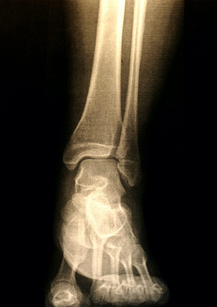 x-ray image of a patients foot